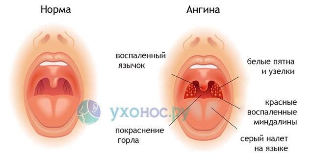 Ангина: симптоми и лечение у детей и взрослих