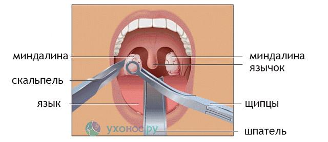 Гной в горле, гнойние пробки: лечение, причини