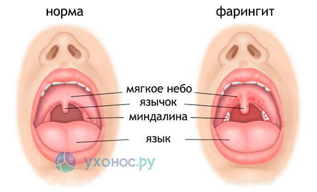 Фарингит: симптоми и лечение у взрослих и детей