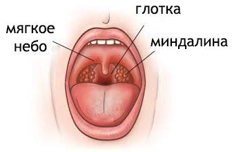 Стрептококк (стрептококковая инфекция): симптоми, лечение