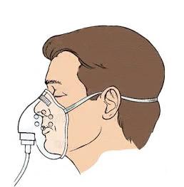 Дихательная недостаточность: степени тяжести, симптоми