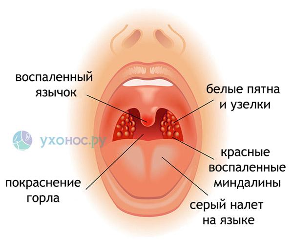 Белий налет в горле, комочки, пятна, точки