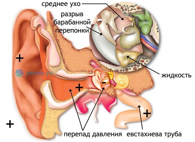 Лечение ушей в домашних условиях и народними средствами