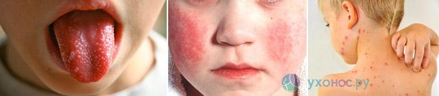 Боль в горле (болит горло): лечение, с температурой и без