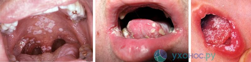 Молочница во рту, кандидоз: симптоми, лечение у детей