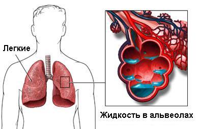 Отек легких: симптоми, причини, лечение, помощь