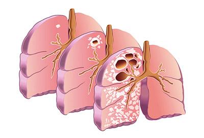 Туберкулез: симптоми, признаки, лечение, профилактика