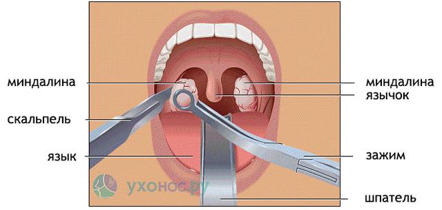 Удаление миндалин, тонзиллектомия: операция, после и до