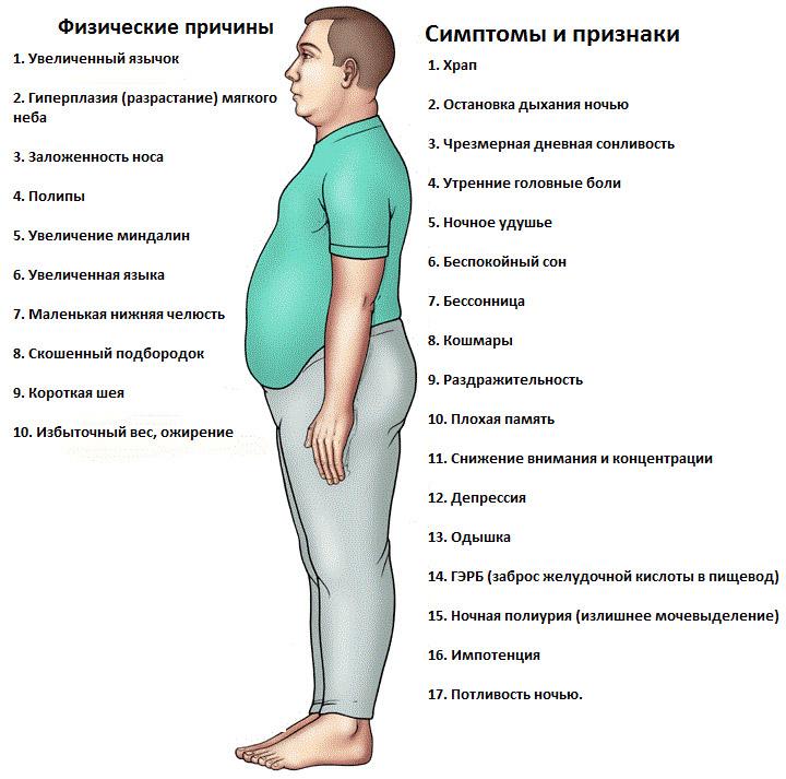 Апное (сна, синдром ночного): лечение, причини