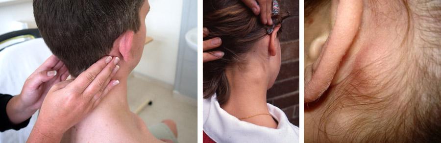 Воспаление лимфоузлов за ушами: лечение, причини