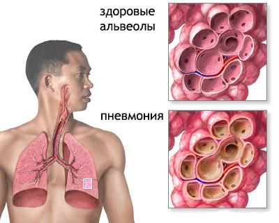 Гемофильная инфекция, палочка: прививка, лечение