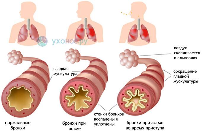 Мокрота с кровью, зеленая, в бронхах, легких, лечение и причини