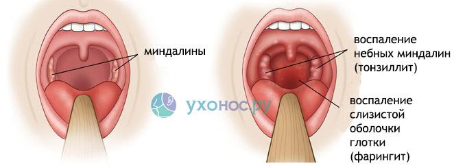 Таблетки от горла: от боли, средства, лекарства, леденци