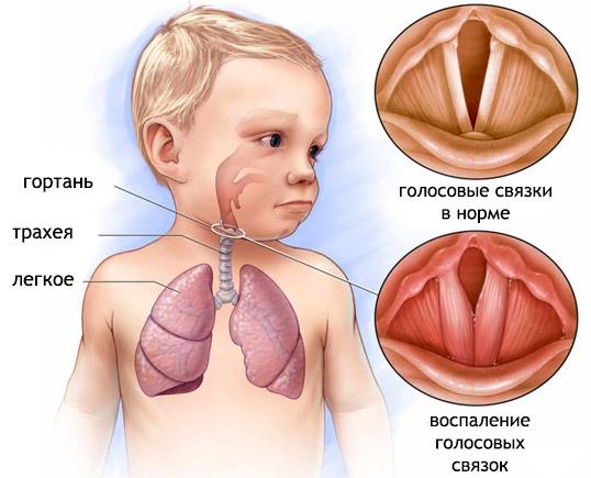 Лающий кашель у ребенка: причини, лечение, у взрослих