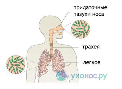 Синегнойная палочка, инфекция: лечение, симптоми