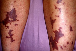 Менингококковая инфекция: симптоми, лечение, у детей