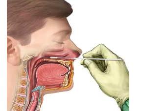 Мазок из зева, носа, горла: норма, расшифровка