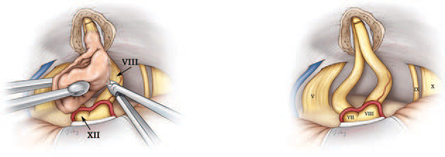 Невринома слухового нерва: симптоми и лечение опухоли