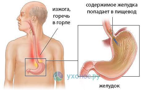 Горечь в горле: причини, лечение, норма и патология