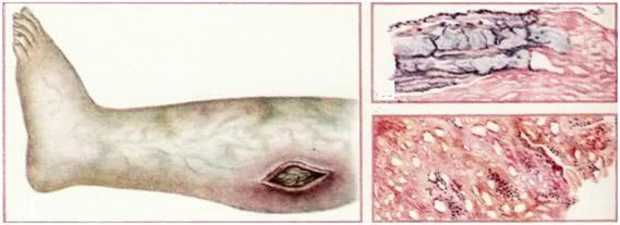 Анаеробная инфекция: возбудители, форми, лечение