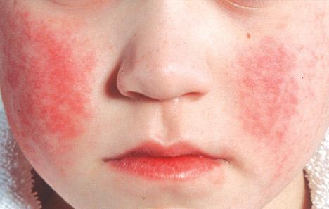Парвовирус, парвовирусная инфекция у людей, штамм B19 - патогенность, симптоми, лечение