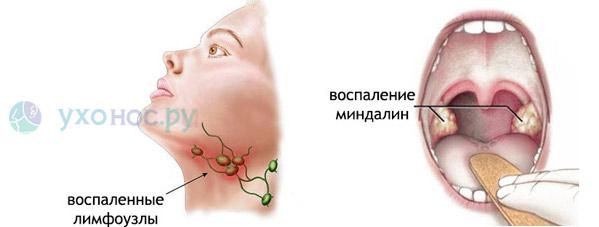 Доктор комаровский повышение иммунитета