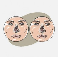 Подслизистая резекция перегородки носа