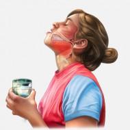 Йодобромная вода полоскание горла