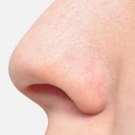 Отек слизистой носа чем грозит