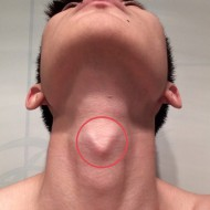Болит кадык при глотании или нажатии у мужчин