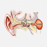Невринома слухового нерва симптомы лечение народными средствами thumbnail