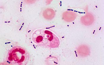 Стрептококк агалактия в мазке 16