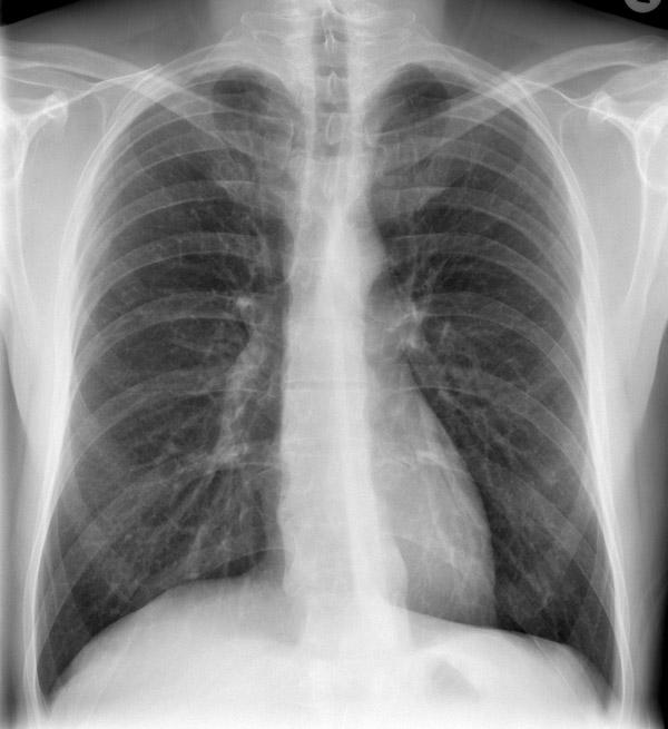 Хламидии пневмонии лечение 26