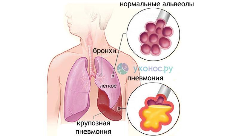 Хламидии пневмонии лечение 23