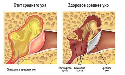 Резкая боль в горле