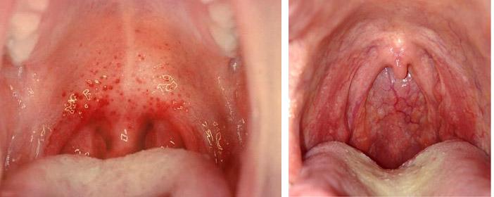 Боль в горле: почему возникает и что делать, если болит горло, как и чем лечить боль в горле в домашних условиях?