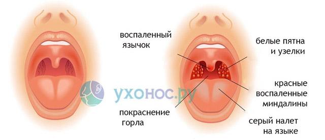 Болит горло больно глотать отекает