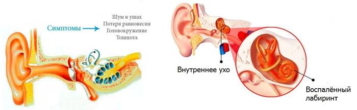 Периферический вестибулярный синдром