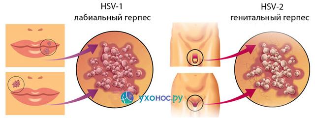 Что такое герпес — подробно о вирусе, его симптомы и лечение