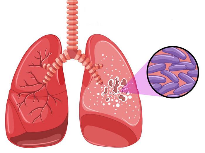 Кровохаркання причини
