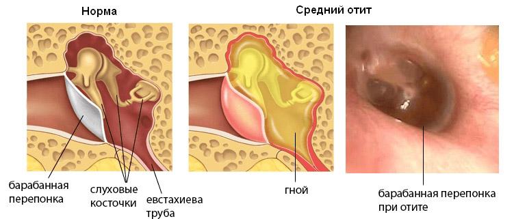 Отек среднего уха симптомы и лечение