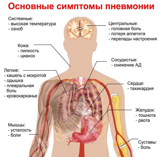 Неспецифическая интерстициальная пневмония
